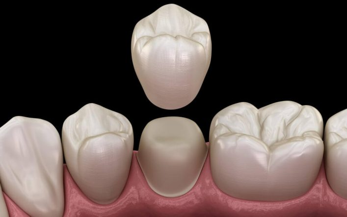 Dental Crowns: What Are They And How Do They Work?